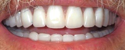 dentures1b