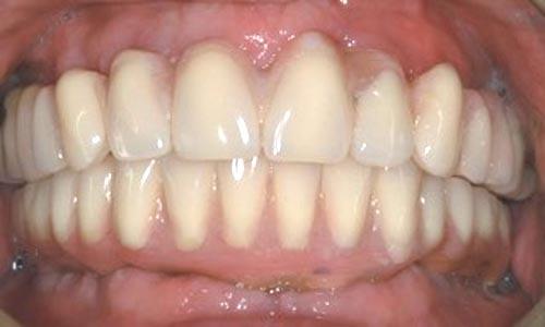 implant-re-2c