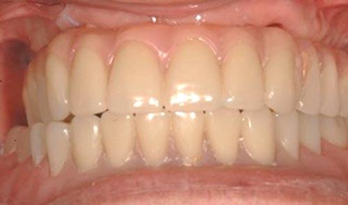 implant-re-3b