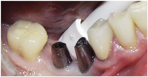 implant1b