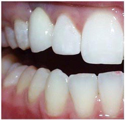 implant5b