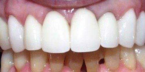 smile2b