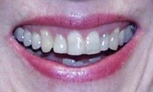 smile5a